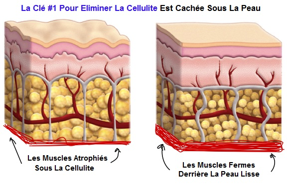 the-number-1-key-to-killing-cellulite-is-hidden-below-the-surface